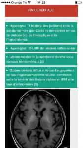 NeuroXdiag_2